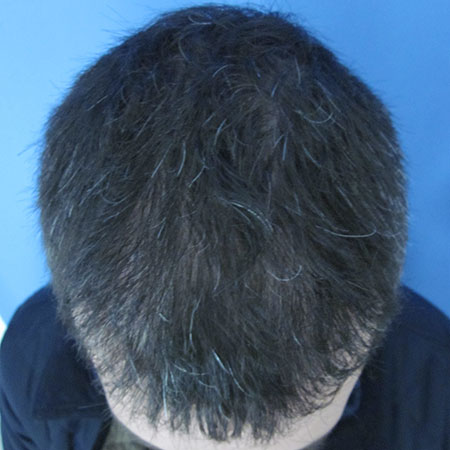 After-Greffe de cheveux