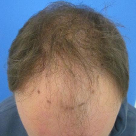 Before-Greffe de cheveux